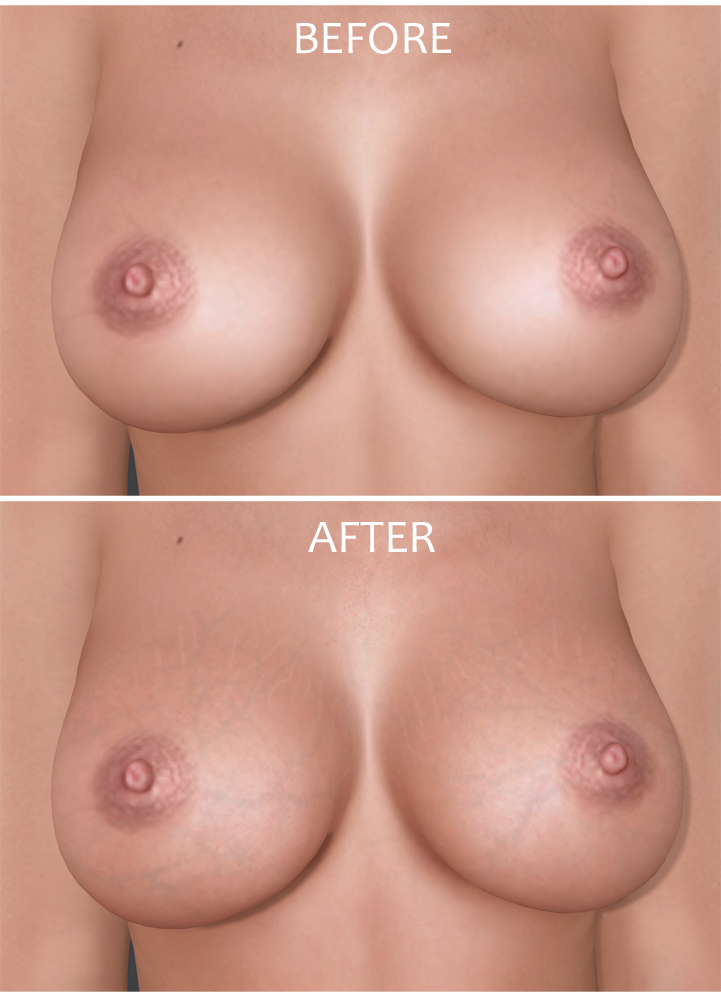 Before-after sl breasts